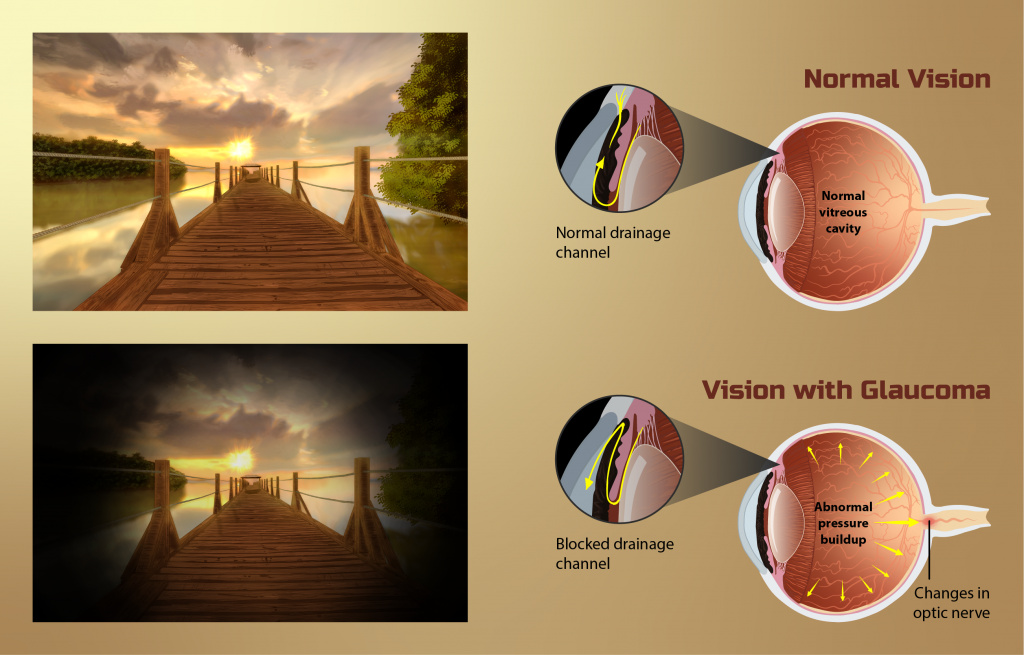 Imagen de visión de una persona con Glaucoma